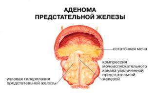 Каковы симптомы аденомы простаты у мужчин и лечение ее препаратами