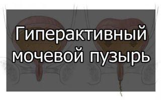 Проявление и лечение гиперактивного мочевого пузыря