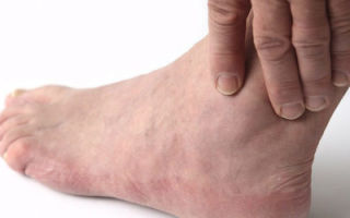 Почему отекают ноги у некоторых мужчин?