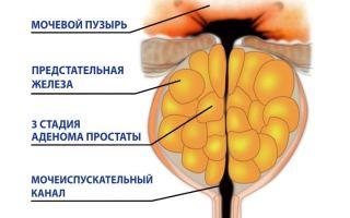 Современная терапия аденомы предстательной железы: отзывы о простапланте