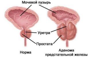 Аденома простаты: обструктивные и ирритативные симптомы