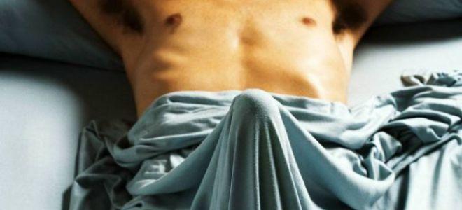 Мужской приапизм: симптомы и методы лечения