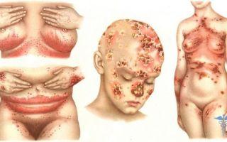 Какие заболевания вызывает дрожжевой грибок у мужчин?