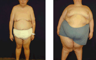 Причины и лечение гипогонадизма у мужчин