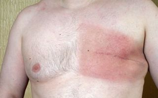 Воспаления молочной железы у представителей сильного пола