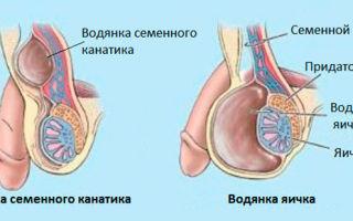 Что нужно знать о водянке яичка и семенного канатика