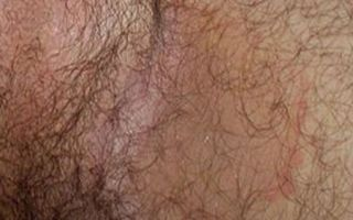 Причины и лечение раздражения в паху у мужчин