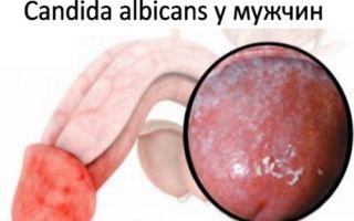 Способы лечения candida albicans у мужчин