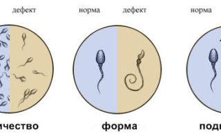Спермограмма  — нормативные показатели активности для зачатия