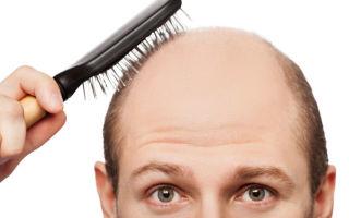 Обильно выпадают волосы: какие анализы сдать в первую очередь?