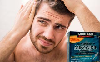 Миноксидил (Minoxidil) отзывы мужчин о препарате