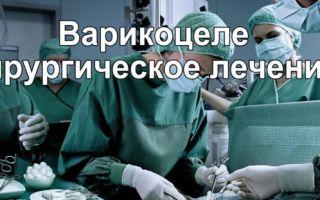 Хирургическое вмешательство при варикоцеле у мужчин