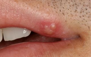 Как распознать венерическое заболевание у мужчин?