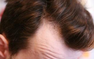 Что делать, если на голове появилась залысина?