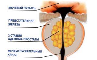 Какие упражнения при аденоме предстательной железы наиболее эффективны?