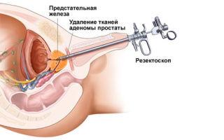 Лечение лазером простатита и аденомы простаты