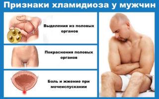Признаки мужских половых инфекций и их лечение