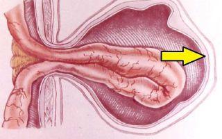 Паховая грыжа у мужчин: симптомы и лечение