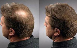 Как осуществить восстановление волос: рекомендации мужчинам