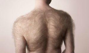 Причины появления волос на спине у мужчин