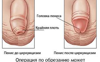 В каком возрасте можно и лучше всего делать обрезание: особенности