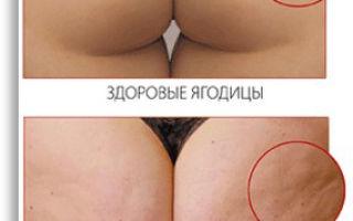 Особенности и лечение целлюлита у мужчин