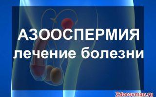 Азооспермия у мужчин: лечение, симптомы, диагностика