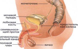 Лечение болезней мочевого пузыря у мужчин