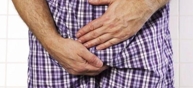 Боли в паху у мужчин слева: возможные причины и способы лечения