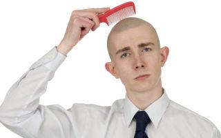 Если ежедневно выпадает много волос: каковы причины и что делать