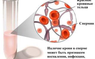 Диагностика и лечение эпидидимита