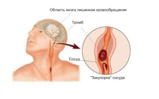 Как должна быть сформирована диета больного после ишемического инсульта