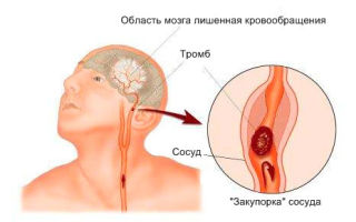 Как выглядят предвестники инсульта?
