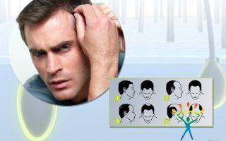 Что делать мужчинам, чтобы волосы не выпадали?