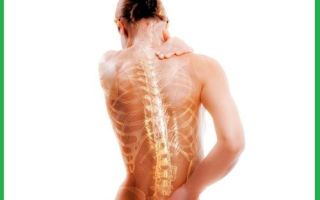 Симптомы и лечение при развитии остеопороза у мужчин