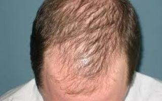Почему у мужчин выпадают волосы на голове?