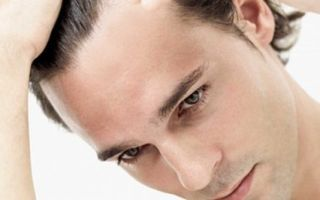 Что необходимо знать про выпадение волос у мужчин?