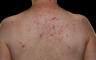 Причины и лечение прыщей на теле у мужчин
