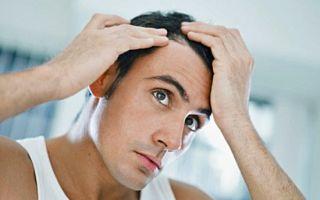 Почему выпадают волосы у мужчин: что делать для предотвращения облысения