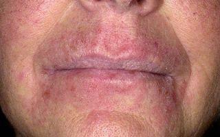 Причины раздражения на лице и шее у мужчин