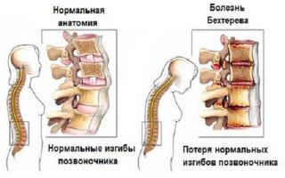 Болезнь Бехтерева у мужчин: проявления и лечение