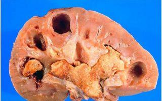 Мочекаменная болезнь: симптомы и особенности лечения у мужчин