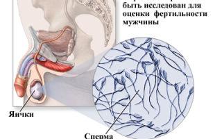 Что делать,если не выделяется сперма? лечение существует!