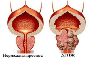 Симптомы и лечение дгпж 1 степени
