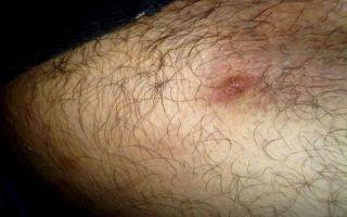 Различные кожные заболевания в паховой области у мужчин