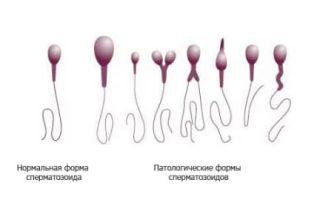 Почему нарушается морфология сперматозоидов и как это лечится?