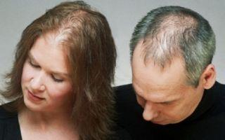 Выпадение волос: причины облысения мужчин и женщин