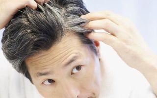 Что делать, если рано седеют волосы у мужчин: почему это происходит?