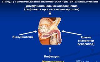 Синдром хронической тазовой боли и его лечение у мужчин
