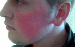 Что вызывает покраснение кожи лица у мужчин?